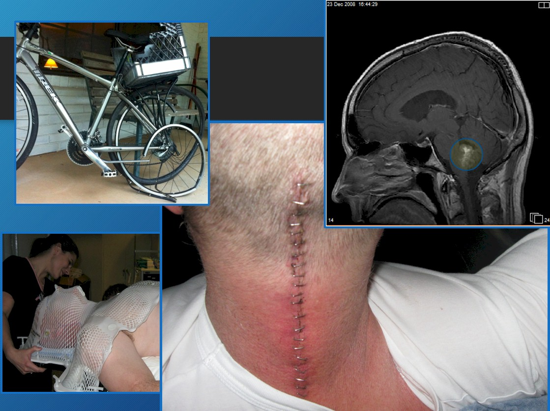 brain and spinal cancer + bike wreck
